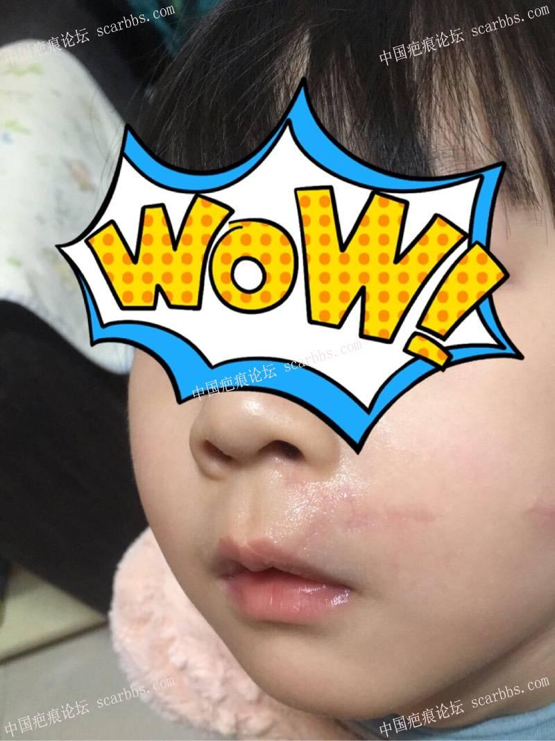 宝贝嘴巴摔伤,分享手术和护理过程。13-疤痕体质图片_疤痕疙瘩图片-中国疤痕论坛