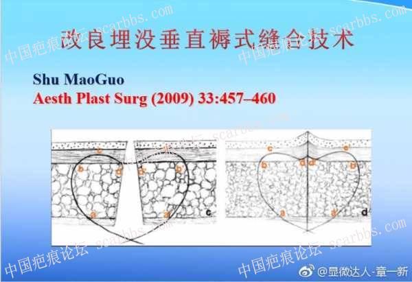 宝贝嘴巴摔伤,分享手术和护理过程。67-疤痕体质图片_疤痕疙瘩图片-中国疤痕论坛
