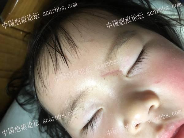 求助,宝宝拆线了,不知道祛疤怎么用药?88-疤痕体质图片_疤痕疙瘩图片-中国疤痕论坛