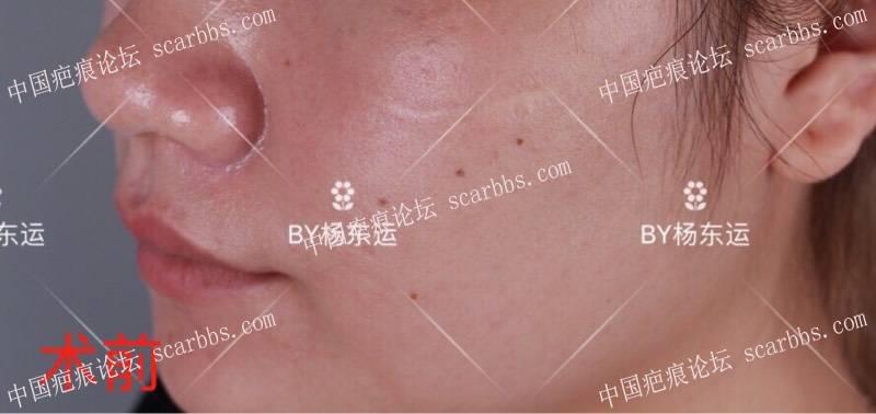 面部色素疤痕手术切缝恢复半年效果图72-疤痕体质图片_疤痕疙瘩图片-中国疤痕论坛