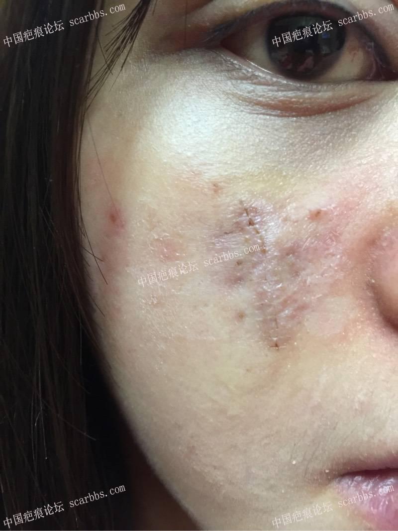 1.23日脸部凹陷切除。一厘米凹陷疤痕来找杨教授切除啦44-疤痕体质图片_疤痕疙瘩图片-中国疤痕论坛