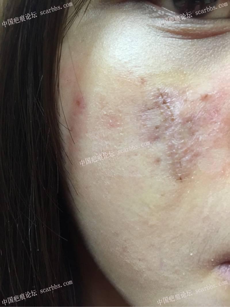 1.23日脸部凹陷切除。一厘米凹陷疤痕来找杨教授切除啦76-疤痕体质图片_疤痕疙瘩图片-中国疤痕论坛