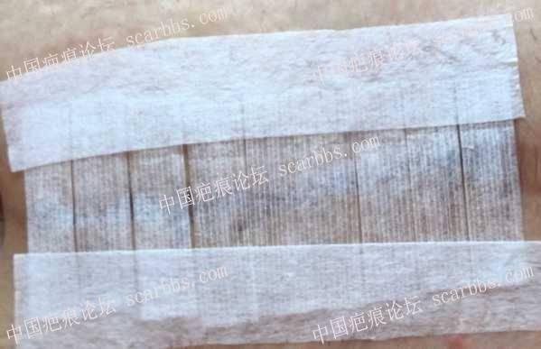 剖腹产后第七天,关于使用3m免缝胶带和美皮护的疑问34-疤痕体质图片_疤痕疙瘩图片-中国疤痕论坛