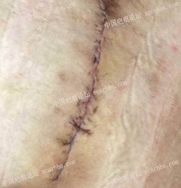 剖腹产后第七天,关于使用3m免缝胶带和美皮护的疑问51-疤痕体质图片_疤痕疙瘩图片-中国疤痕论坛