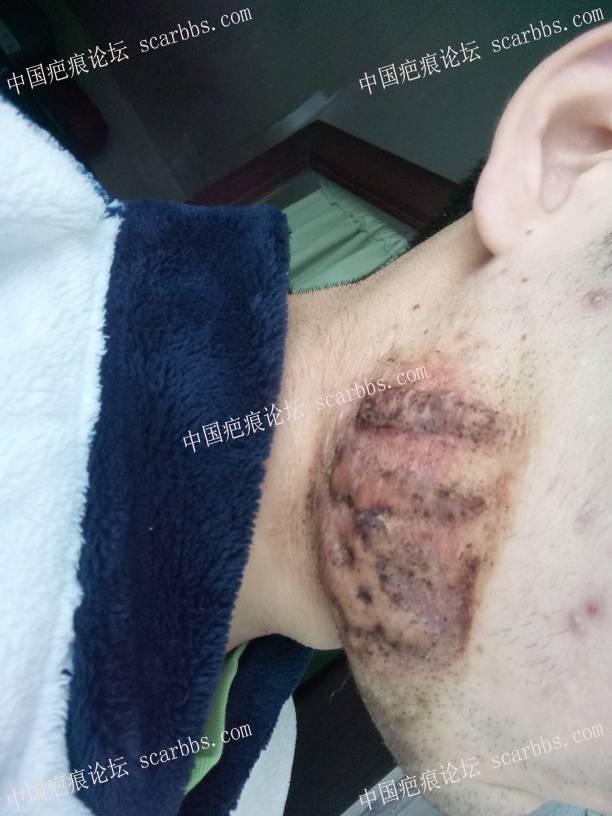 记录下7年腮部瘢痕疙瘩用药修复情况