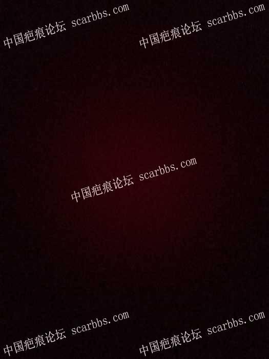 2017.12.19,面部凹陷疤痕:重庆杨东运教授做了疤痕切缝手术89-疤痕体质图片_疤痕疙瘩图片-中国疤痕论坛