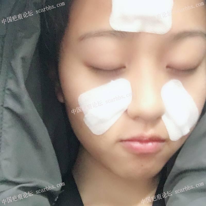 昨天做了痘坑切割手术 每天记录 切除最后的效果71-疤痕体质图片_疤痕疙瘩图片-中国疤痕论坛