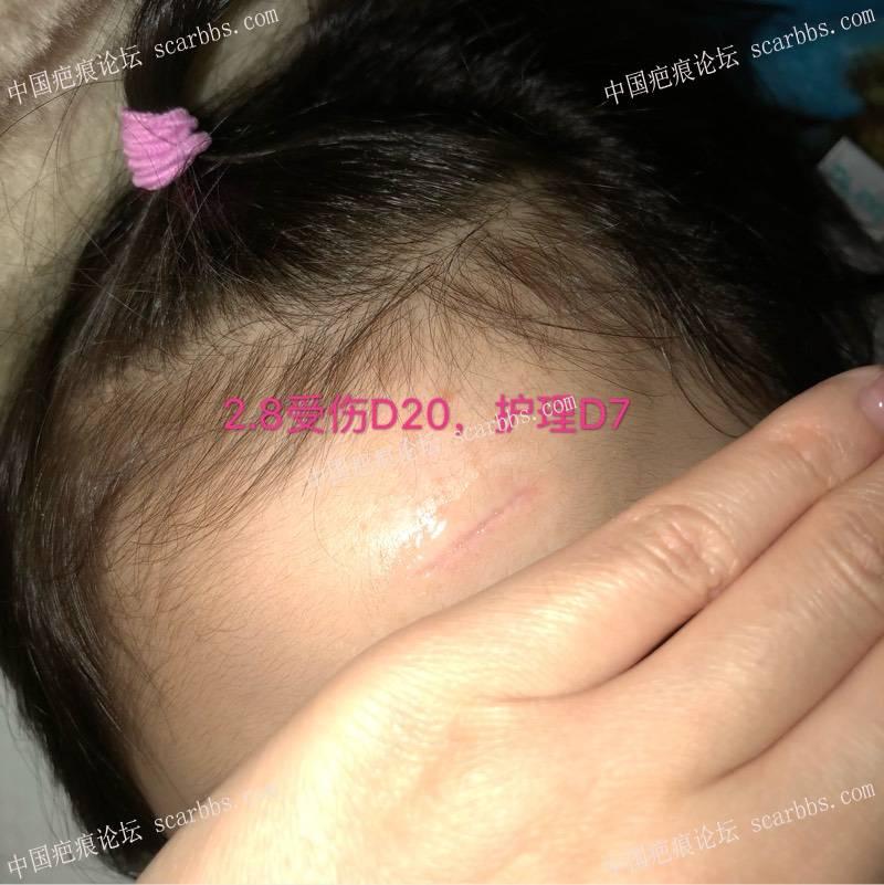 宝贝额头磕伤缝针,横伤,想记录一下恢复过程65-疤痕体质图片_疤痕疙瘩图片-中国疤痕论坛