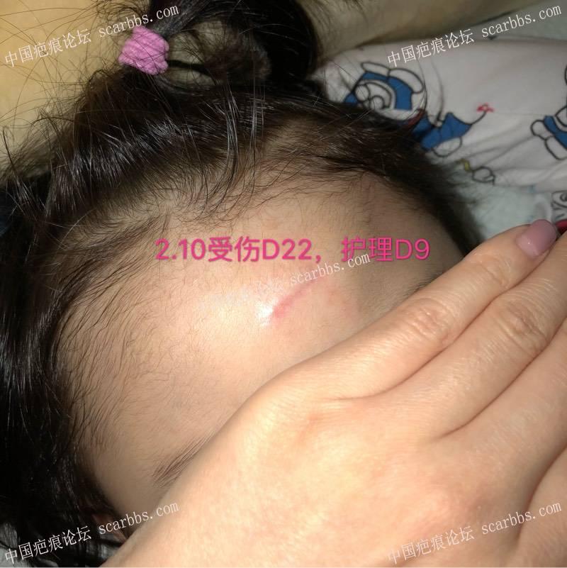宝贝额头磕伤缝针,横伤,想记录一下恢复过程99-疤痕体质图片_疤痕疙瘩图片-中国疤痕论坛