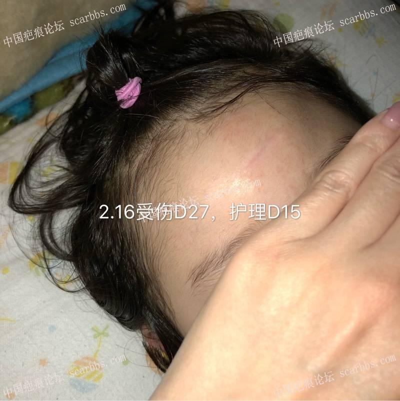 宝贝额头磕伤缝针,横伤,想记录一下恢复过程0-疤痕体质图片_疤痕疙瘩图片-中国疤痕论坛