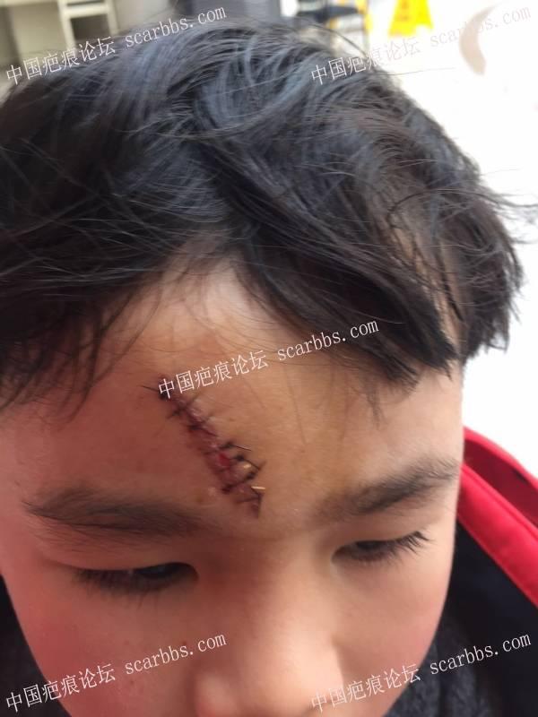 宝宝额头缝了7针.已经拆线.求教大家用什么药.十分感谢22-疤痕体质图片_疤痕疙瘩图片-中国疤痕论坛