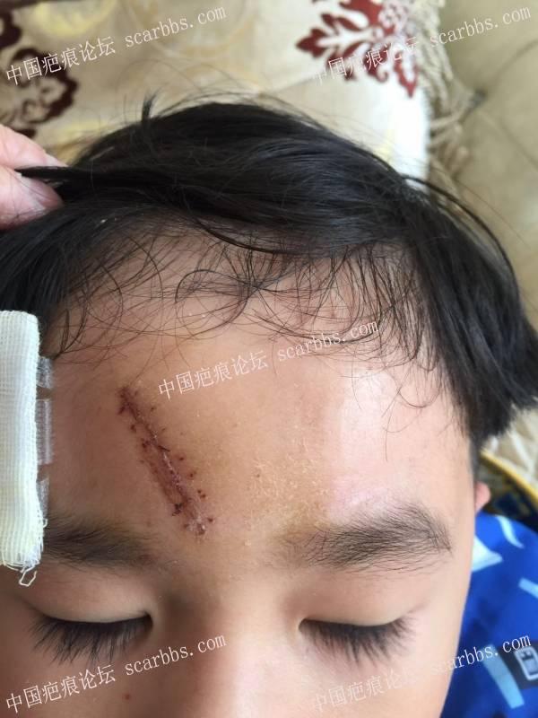宝宝额头缝了7针.已经拆线.求教大家用什么药.十分感谢