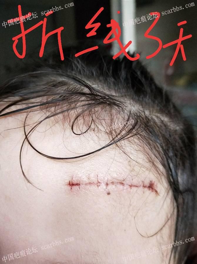 额头摔伤,请各位有经验的帮我看看这个恢复效果0-疤痕体质图片_疤痕疙瘩图片-中国疤痕论坛