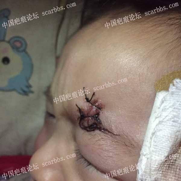 宝宝眉毛上磕伤后的恢复76-疤痕体质图片_疤痕疙瘩图片-中国疤痕论坛