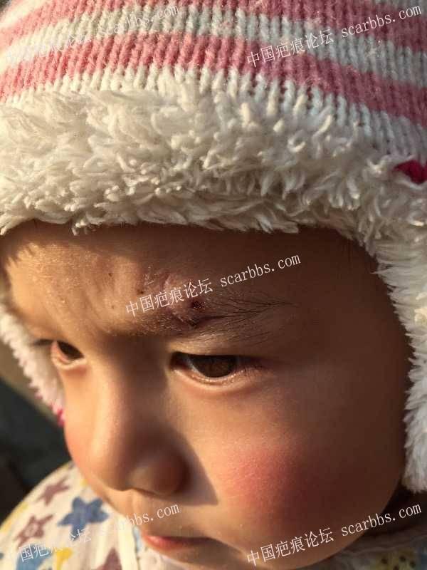 宝宝眉毛上磕伤后的恢复71-疤痕体质图片_疤痕疙瘩图片-中国疤痕论坛