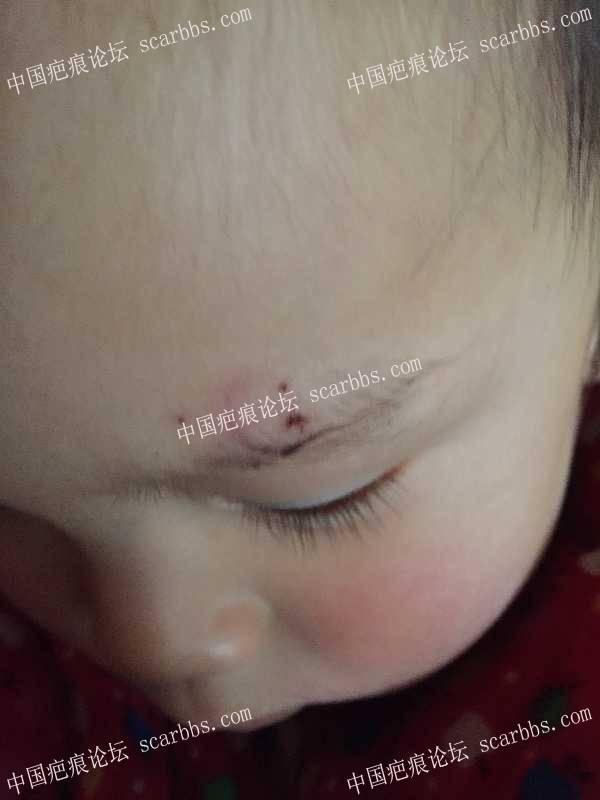 宝宝眉毛上磕伤后的恢复98-疤痕体质图片_疤痕疙瘩图片-中国疤痕论坛