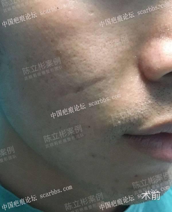 #面部疤痕陈旧疤痕、凹陷疤痕 术后19个月复诊记录