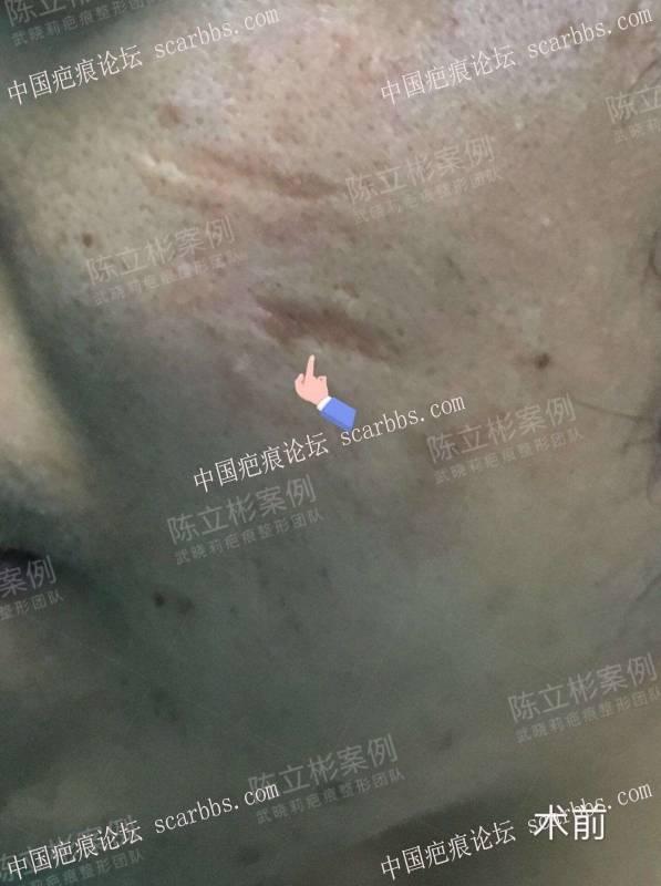 #面部疤痕陈旧疤痕、凹陷疤痕 术后19个月复诊记录30-疤痕体质图片_疤痕疙瘩图片-中国疤痕论坛