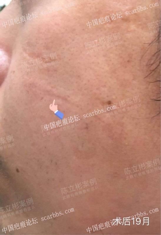 #面部疤痕陈旧疤痕、凹陷疤痕 术后19个月复诊记录58-疤痕体质图片_疤痕疙瘩图片-中国疤痕论坛