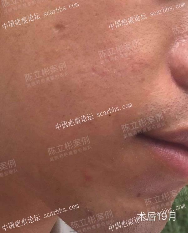 #面部疤痕陈旧疤痕、凹陷疤痕 术后19个月复诊记录18-疤痕体质图片_疤痕疙瘩图片-中国疤痕论坛