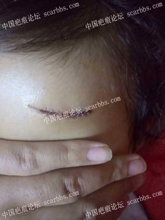 宝贝台阶磕伤额头缝针,记录我的护理之路,求经验交流36-疤痕体质图片_疤痕疙瘩图片-中国疤痕论坛