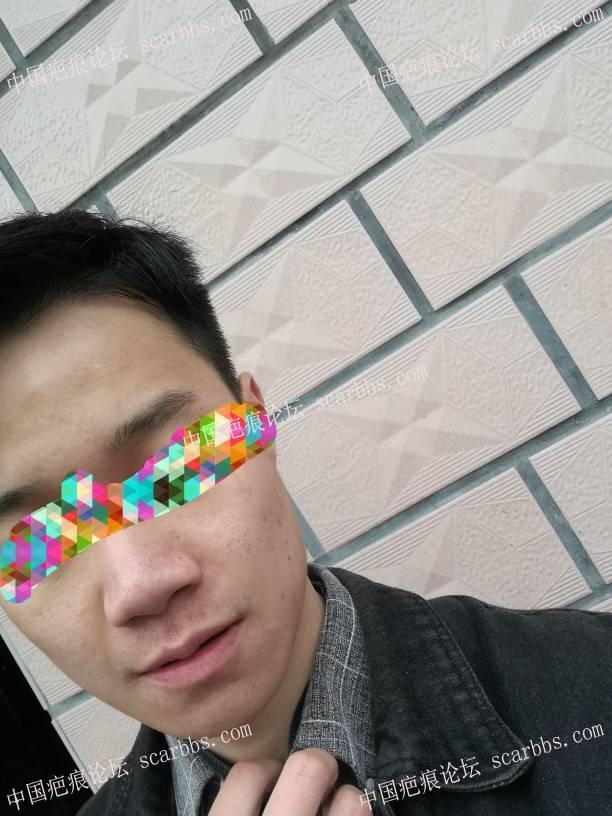 小时候的点痣凹陷疤痕。不建议切72-疤痕体质图片_疤痕疙瘩图片-中国疤痕论坛
