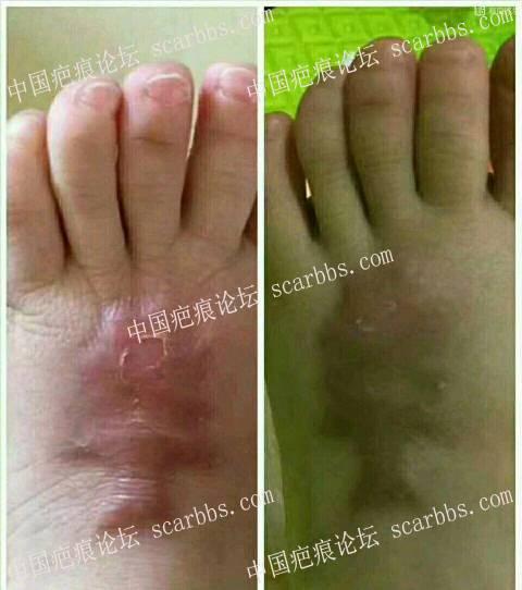 外用中药脚背上的疤痕疙瘩修复好了52-疤痕体质图片_疤痕疙瘩图片-中国疤痕论坛