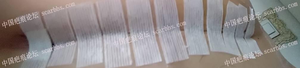 剖腹产手术第十天疤痕触目惊心34-疤痕体质图片_疤痕疙瘩图片-中国疤痕论坛