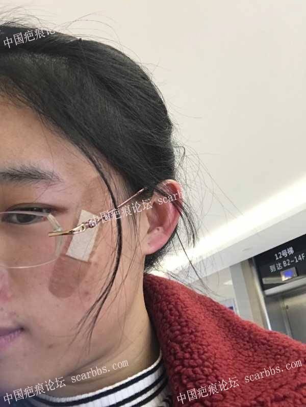 脸部凹陷疤痕切缝手术记录14-疤痕体质图片_疤痕疙瘩图片-中国疤痕论坛