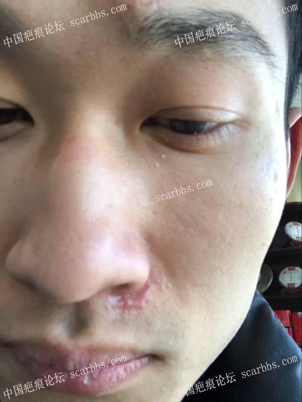 鼻子下侧 和 额头摔伤疤痕 快5个月了 还有没有希望变小73-疤痕体质图片_疤痕疙瘩图片-中国疤痕论坛