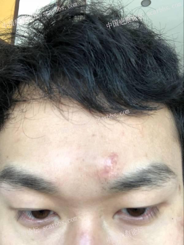 鼻子下侧 和 额头摔伤疤痕 快5个月了 还有没有希望变小5-疤痕体质图片_疤痕疙瘩图片-中国疤痕论坛