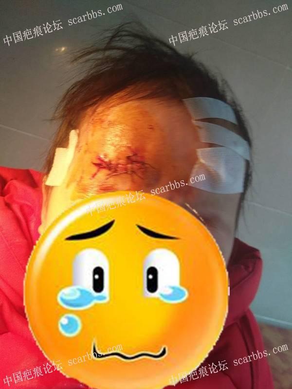 记录宝贝额头摔伤缝针后的抗疤历程,望全好!保佑!71-疤痕体质图片_疤痕疙瘩图片-中国疤痕论坛