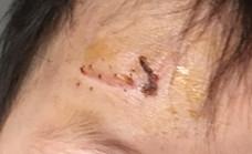 记录宝贝额头摔伤缝针后的抗疤历程,望全好!保佑!