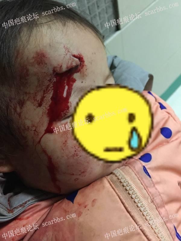 记录宝贝额头摔伤缝针后的抗疤历程,望全好!保佑!37-疤痕体质图片_疤痕疙瘩图片-中国疤痕论坛