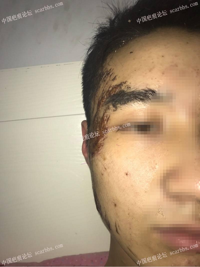 骑车脸部擦伤,好怕留疤。56-疤痕体质图片_疤痕疙瘩图片-中国疤痕论坛