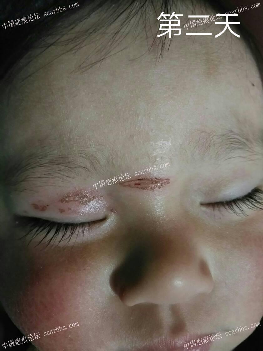 2018年2月8日下午宝宝鼻梁磕伤 开始了漫漫的抗疤之路5-疤痕体质图片_疤痕疙瘩图片-中国疤痕论坛