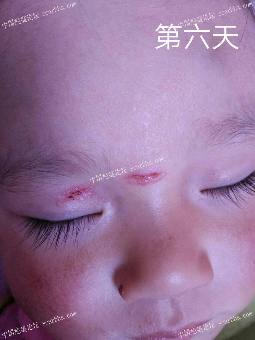 2018年2月8日下午宝宝鼻梁磕伤 开始了漫漫的抗疤之路44-疤痕体质图片_疤痕疙瘩图片-中国疤痕论坛