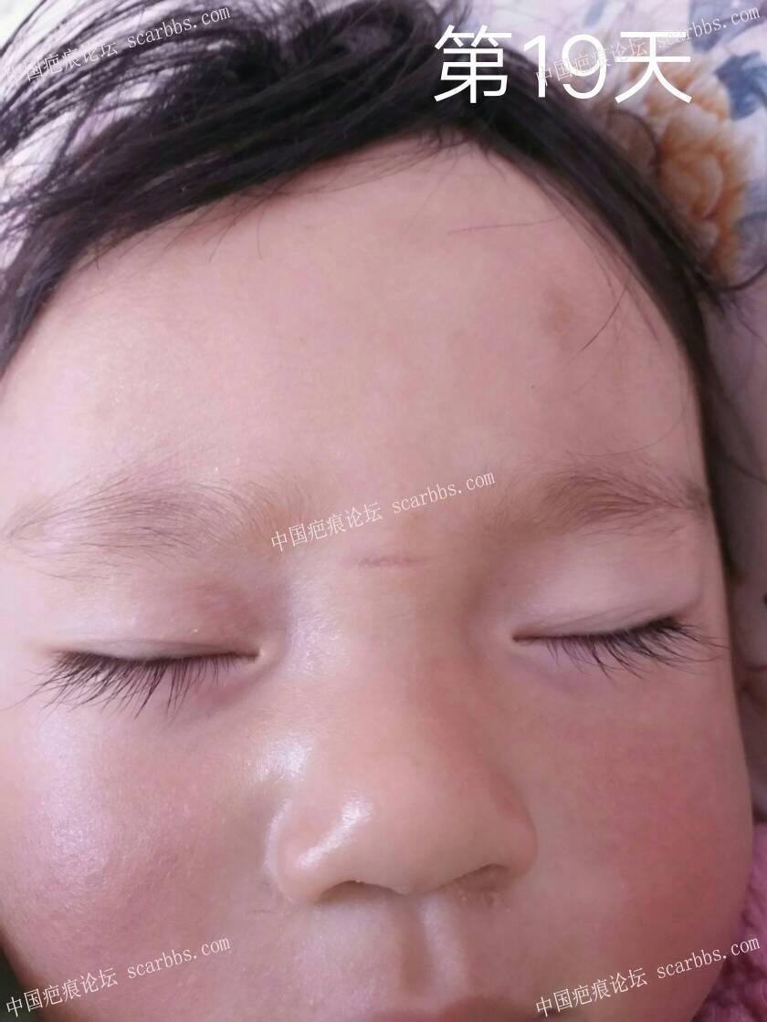 2018年2月8日下午宝宝鼻梁磕伤 开始了漫漫的抗疤之路27-疤痕体质图片_疤痕疙瘩图片-中国疤痕论坛