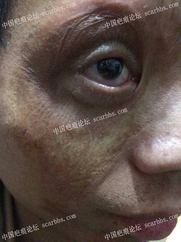 眼睛四周大面积色素,修复感觉有点效果了13-疤痕体质图片_疤痕疙瘩图片-中国疤痕论坛