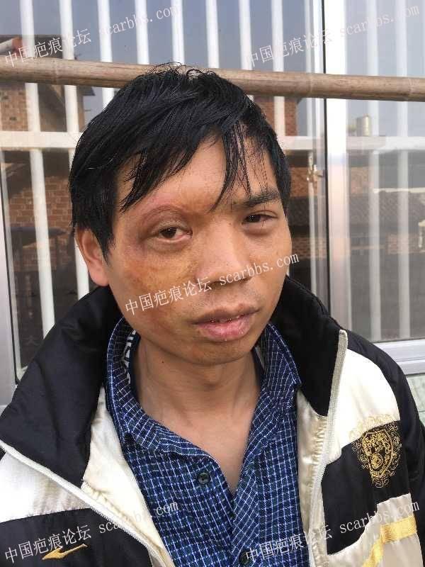 眼睛四周大面积色素,修复感觉有点效果了30-疤痕体质图片_疤痕疙瘩图片-中国疤痕论坛