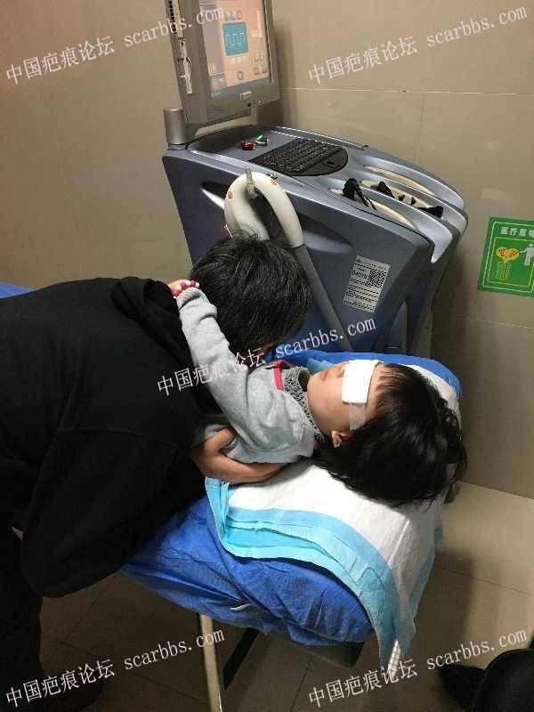 宝贝嘴巴摔伤,分享手术和护理过程。4-疤痕体质图片_疤痕疙瘩图片-中国疤痕论坛