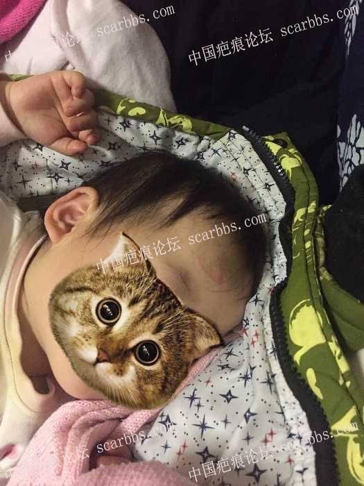 记录宝贝额头摔伤缝针后的抗疤历程,望全好!保佑!69-疤痕体质图片_疤痕疙瘩图片-中国疤痕论坛
