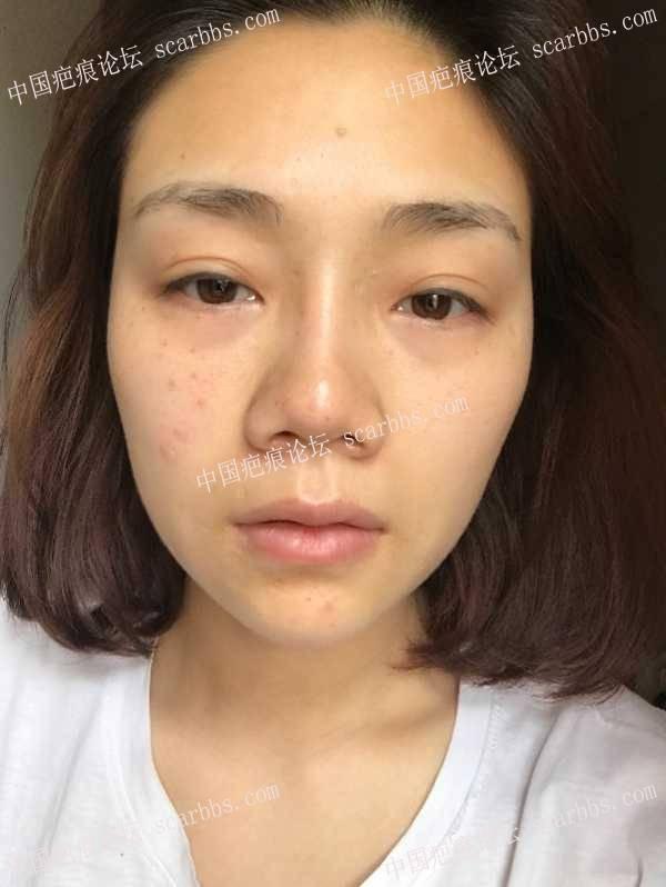 点痣凹坑,预约杨教授3月8号面诊,先发个贴占个位9-疤痕体质图片_疤痕疙瘩图片-中国疤痕论坛