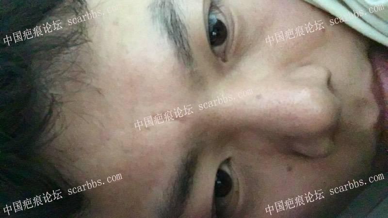 切除额头凹陷疤痕前后对比图