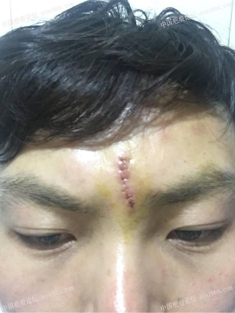 切除额头凹陷疤痕前后对比图14-疤痕体质图片_疤痕疙瘩图片-中国疤痕论坛