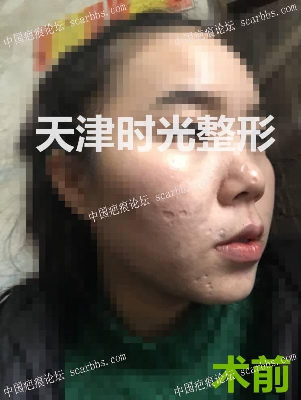 痘坑(疤痕)切缝对比效果图7-疤痕体质图片_疤痕疙瘩图片-中国疤痕论坛