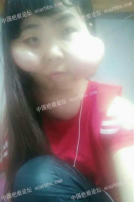 脸部扩张器打水3个多月了52-疤痕体质图片_疤痕疙瘩图片-中国疤痕论坛