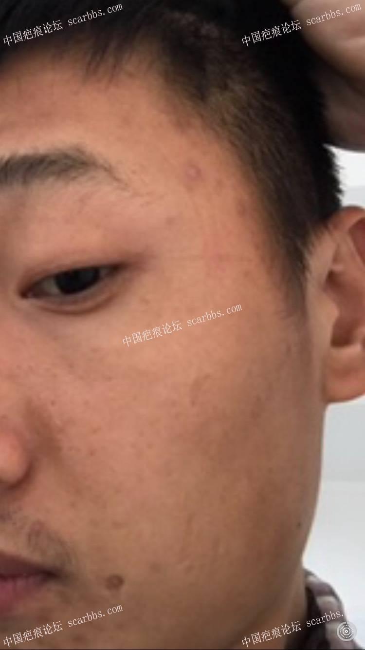 脸上疤痕,杨东运教授治疗反馈贴(3月8号手术)