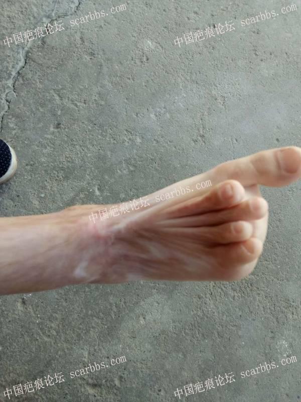 表妹15年冬天烫伤后疤痕修复71-疤痕体质图片_疤痕疙瘩图片-中国疤痕论坛