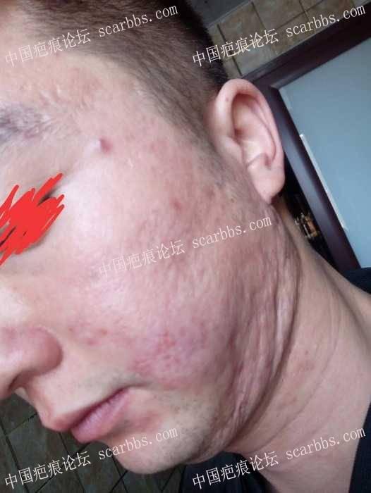 痘坑疤痕,全脸没有一处好皮肤,真是人生无光啊52-疤痕体质图片_疤痕疙瘩图片-中国疤痕论坛